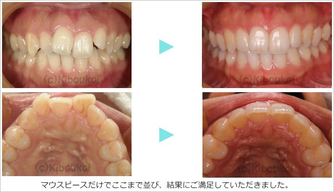 kyousei-05
